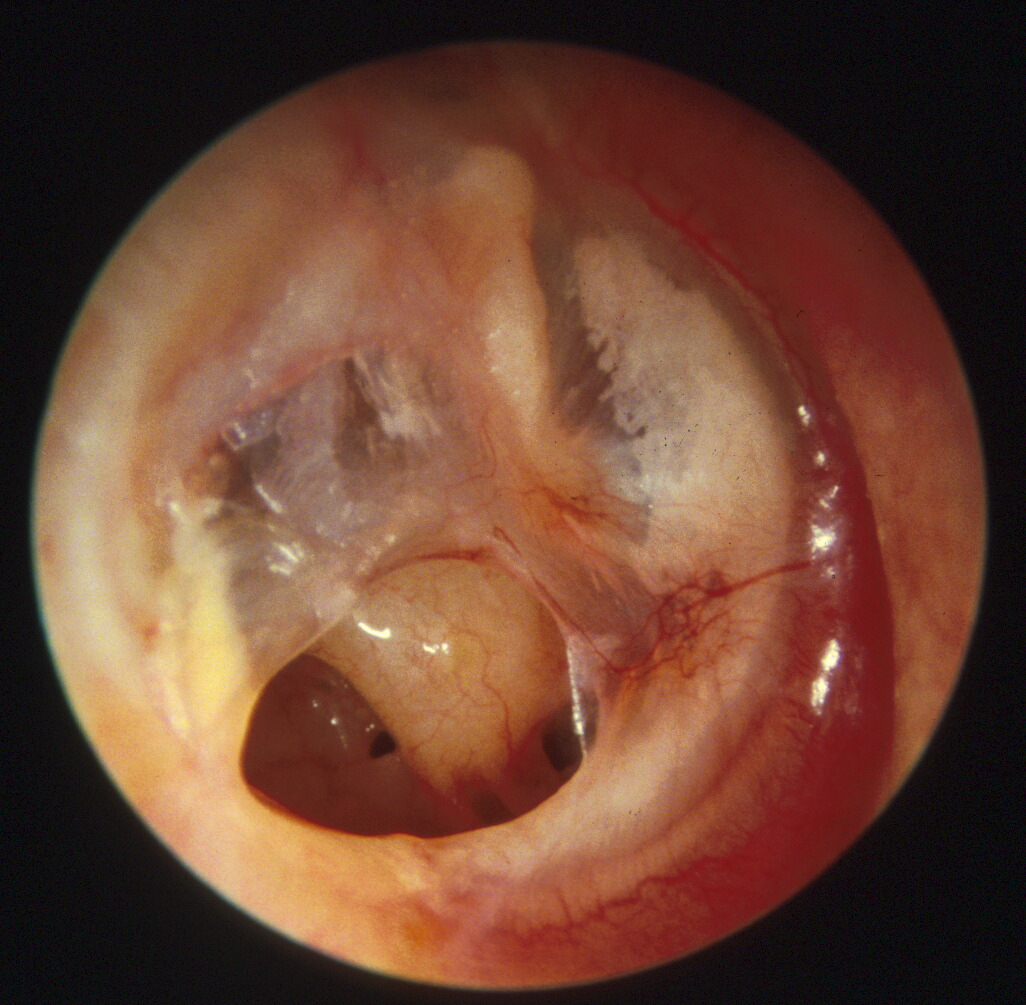 Image result for ear drum hole