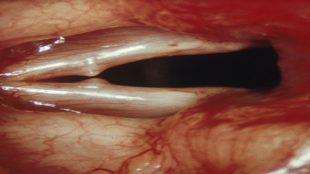 laryngoscopy. vocal nodules laryngoscopy s